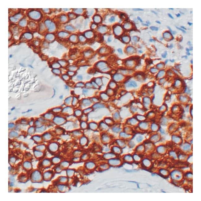 Thermo Scientific Lab Vision Cytokeratin 5, Rabbit Monoclonal Antibody::