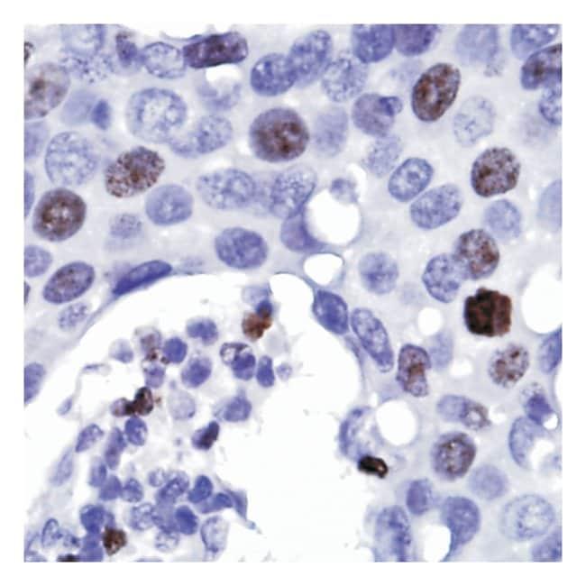 Thermo Scientific Lab Vision Ki-67, Rabbit Monoclonal Antibody::