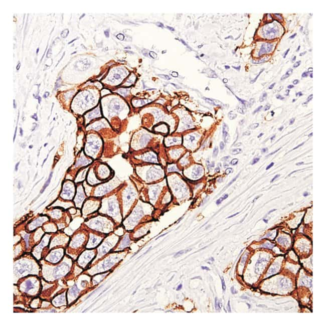 Thermo Scientific Lab Vision HER-2/c-erB-2/neu, Rabbit Monoclonal Antibody::