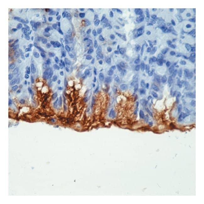 Thermo Scientific Lab Vision Mucin 5AC (MUC5AC)/Gastric Mucin Ab-1, Mouse