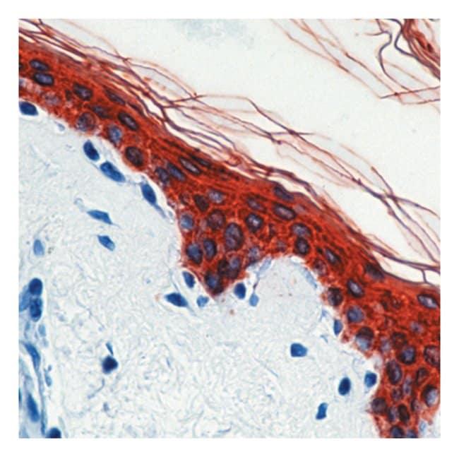 Thermo Scientific Lab Vision Cytokeratin, Pan Ab-1, Mouse Monoclonal Antibody::