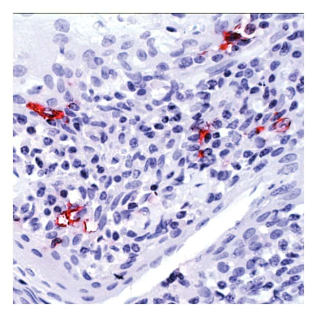Thermo Scientific Lab Vision CD1a Ab-5, Mouse Monoclonal Antibody::