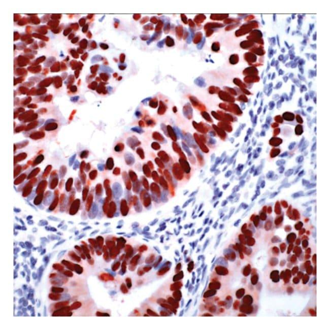 Thermo Scientific Lab Vision p53, Rabbit Monoclonal Antibody (Clone SP5)::