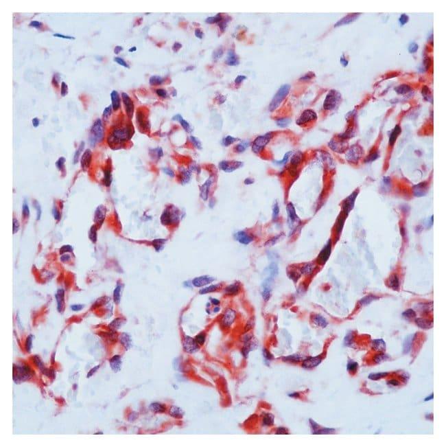 Thermo Scientific Lab Vision Flt-1/VEGFR1 Ab-1, Rabbit Polyclonal Antibody::