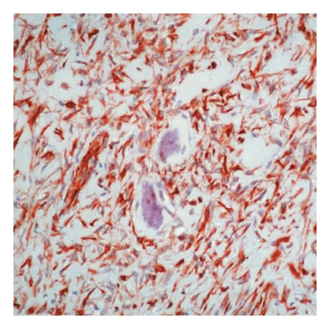 Thermo Scientific Lab Vision Vimentin Ab-2, Mouse Monoclonal Antibody 500µL;