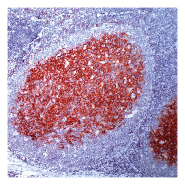Thermo Scientific Lab Vision CD23, Rabbit Monoclonal Antibody::