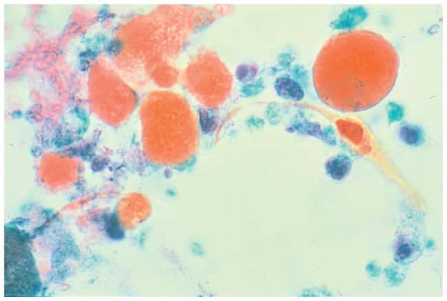 Thermo Scientific Shandon OG-6 Stain:Chemicals:Biochemicals and Diagnostics