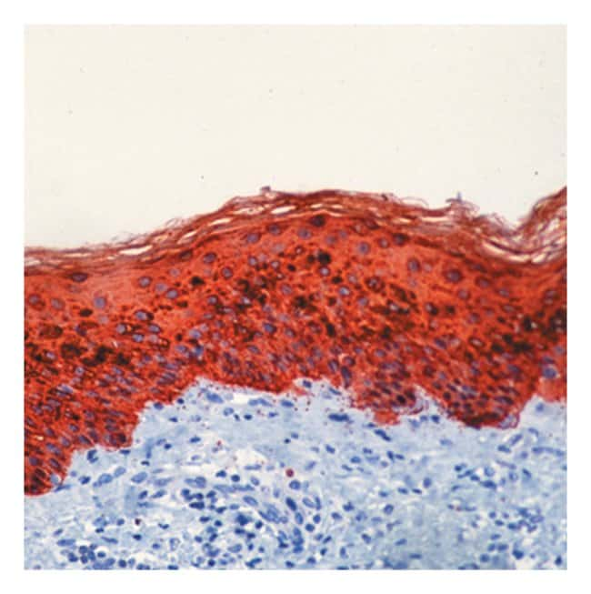 Thermo Scientific Lab Vision Cytokeratin, Pan Ab-2, Mouse Monoclonal Antibody::