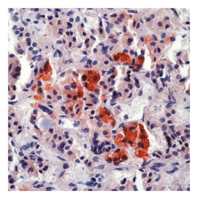 Epredia™Lab Vision™ Adrenocorticotrophic Hormone (ACTH) Ab-1 Mouse Monoclonal Antibody, 200µg/mL, BSA and azide 100μL; 1mg/mL; Unlabeled; Purified without BSA and azide Epredia™Lab Vision™ Adrenocorticotrophic Hormone (ACTH) Ab-1 Mouse Monoclonal Antibody, 200µg/mL, BSA and azide