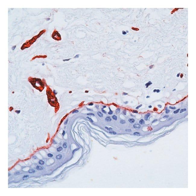 Epredia™Lab Vision™ Laminin Ab-1 Rabbit Polyclonal Antibody with BSA and azide 12mL; Unlabeled; Ready to Use Epredia™Lab Vision™ Laminin Ab-1 Rabbit Polyclonal Antibody with BSA and azide