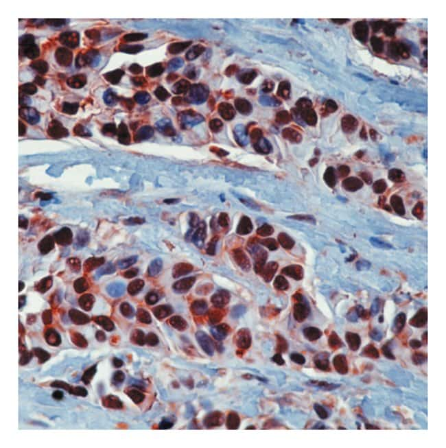 Epredia™ Lab Vision™ Heat Shock Protein 90α/hsp90α (HSP86) Ab-1 Rabbit Polyclonal Antibody with BSA and azide 500μL; 1mg/mL; Unlabeled; Purified without BSA and azide Epredia™ Lab Vision™ Heat Shock Protein 90α/hsp90α (HSP86) Ab-1 Rabbit Polyclonal Antibody with BSA and azide