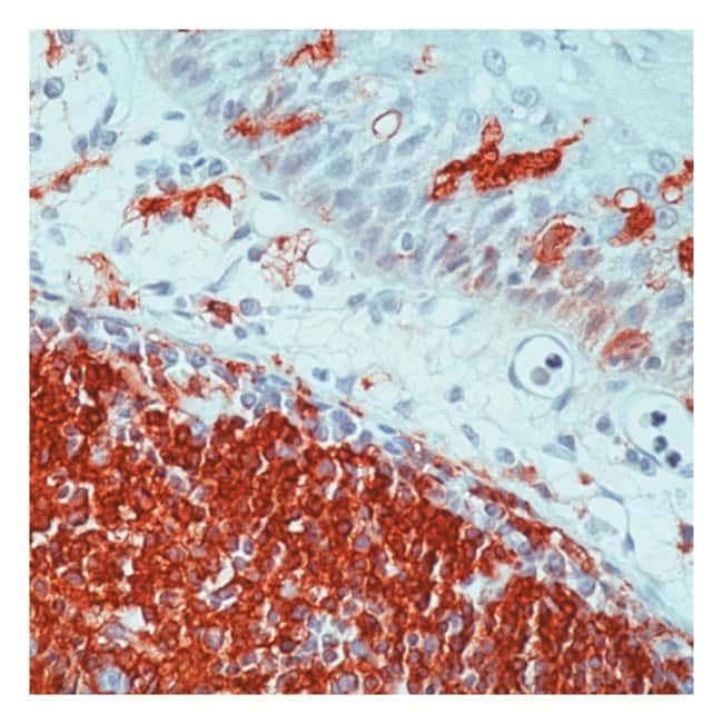 Thermo Scientific Lab Vision MHC II (HLA-DR) Ab-1, Mouse Monoclonal Antibody::