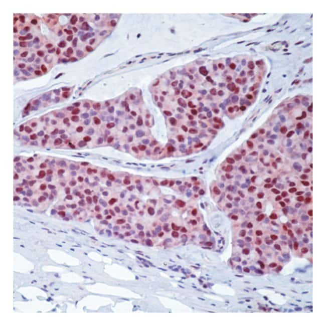 Epredia™Lab Vision™ c-myc Ab-2 Mouse Monoclonal Antibody, 200µg/mL, biotinylated, BSA and azide 500μL; 200μg/mL; Biotin labeled with BSA and azide Epredia™Lab Vision™ c-myc Ab-2 Mouse Monoclonal Antibody, 200µg/mL, biotinylated, BSA and azide