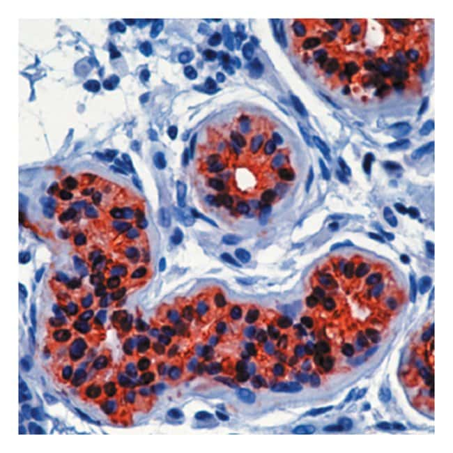 Thermo Scientific™Lab Vision™ Cytokeratin 19 Ab-1, Mouse Monoclonal Antibody 100μL; 200μg/mL; Unlabeled; Purified with BSA and azide Thermo Scientific™Lab Vision™ Cytokeratin 19 Ab-1, Mouse Monoclonal Antibody