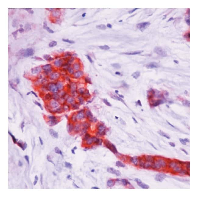 Thermo Scientific Lab Vision pS2/pNR-2 Estrogen-Regulated Protein Ab-2,