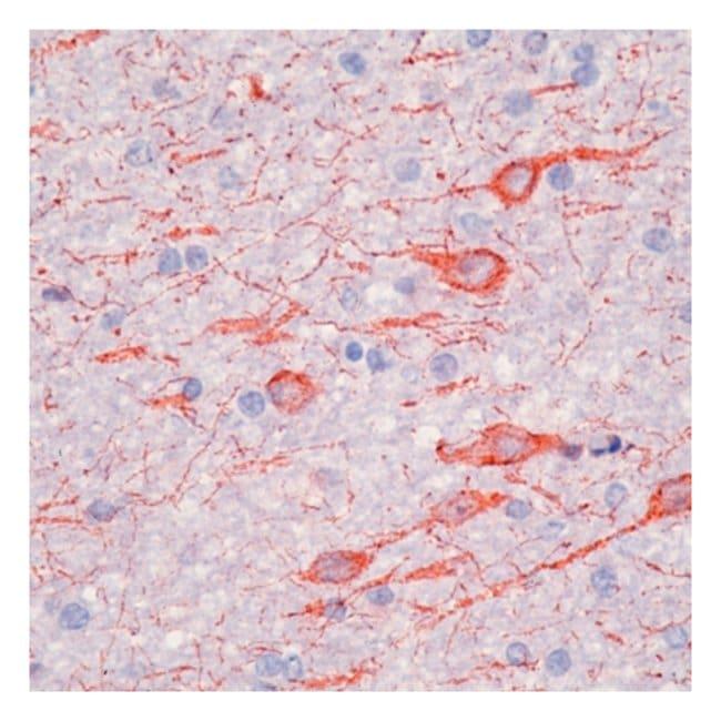 Epredia™Lab Vision™ MAP 2a,b (Microtubule-Associated Protein) Ab-2, Mouse Monoclonal Antibody 500μL; Unlabeled; Supernatant Epredia™Lab Vision™ MAP 2a,b (Microtubule-Associated Protein) Ab-2, Mouse Monoclonal Antibody
