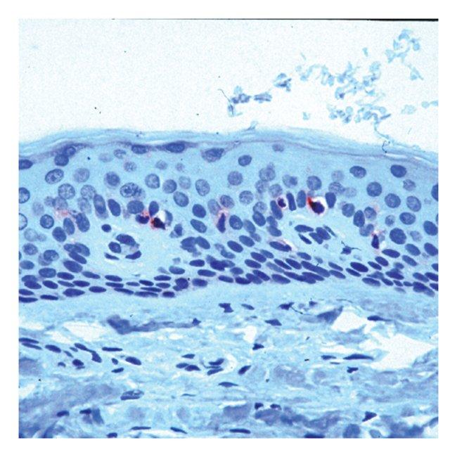 Epredia™Lab Vision™ CD1a Ab-2, Mouse Monoclonal Antibody 500μL; Unlabeled; Supernatant Epredia™Lab Vision™ CD1a Ab-2, Mouse Monoclonal Antibody