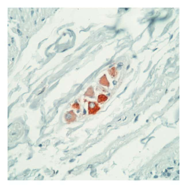Thermo Scientific Lab Vision Ret Oncoprotein Ab-1, Mouse Monoclonal Antibody::