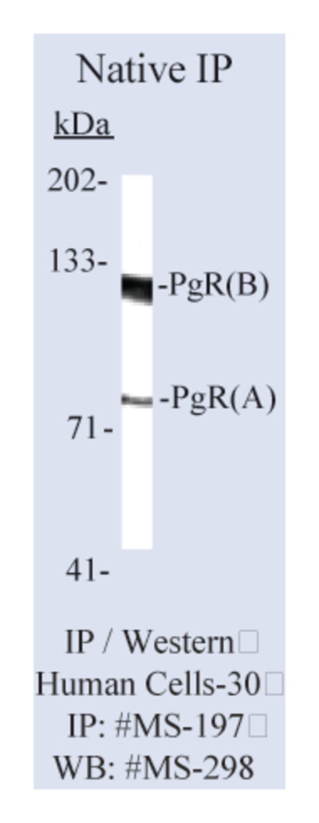 Thermo Scientific Lab Vision Progesterone Receptor Ab-6, Mouse Monoclonal