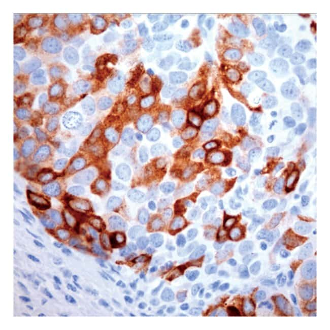 Thermo Scientific Lab Vision Mammaglobin, Mouse Monoclonal Antibody::