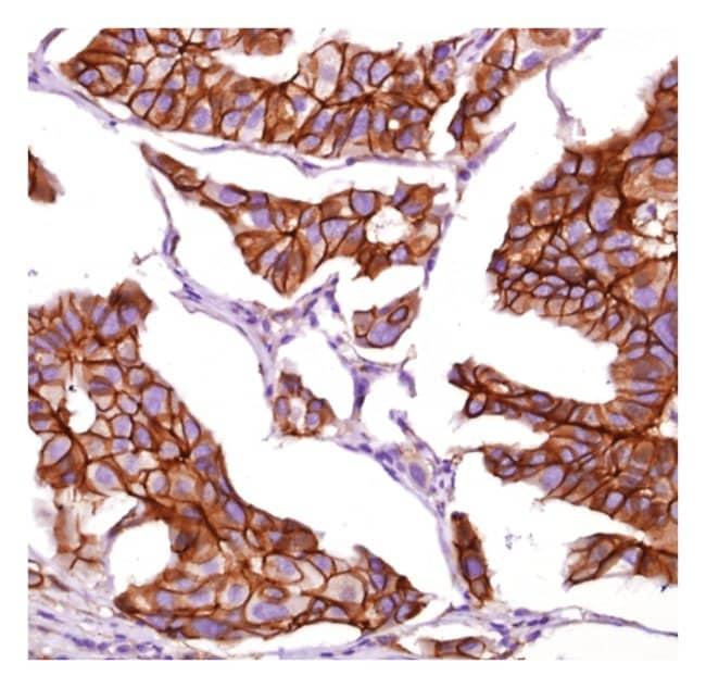 Epredia™Lab Vision™ β-Catenin Rabbit Monoclonal Antibody 12mL; Unlabeled; Ready to Use Epredia™Lab Vision™ β-Catenin Rabbit Monoclonal Antibody