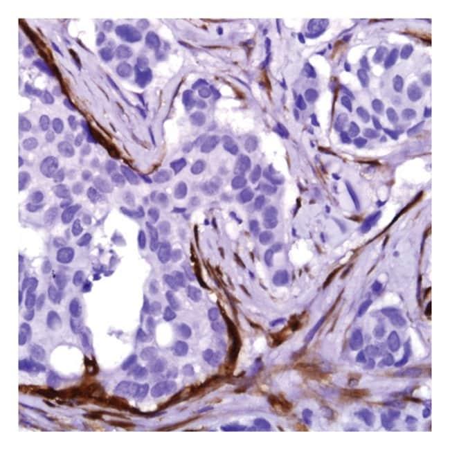 Thermo Scientific™Lab Vision™ Calponin-1, Rabbit Monoclonal Antibody 1mL; Unlabeled Thermo Scientific™Lab Vision™ Calponin-1, Rabbit Monoclonal Antibody