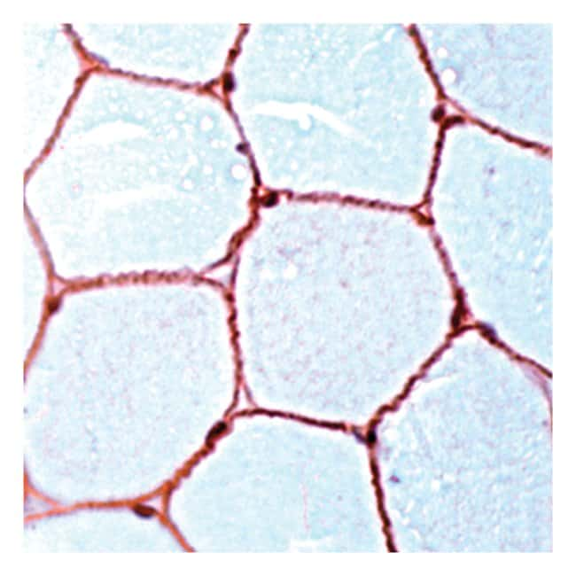 Thermo Scientific Lab Vision Dystrophin, Rabbit Polyclonal Antibody::