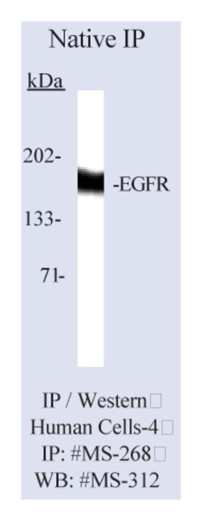 Thermo Scientific Lab Vision Epidermal Growth Factor Receptor/EGFR Ab-1,