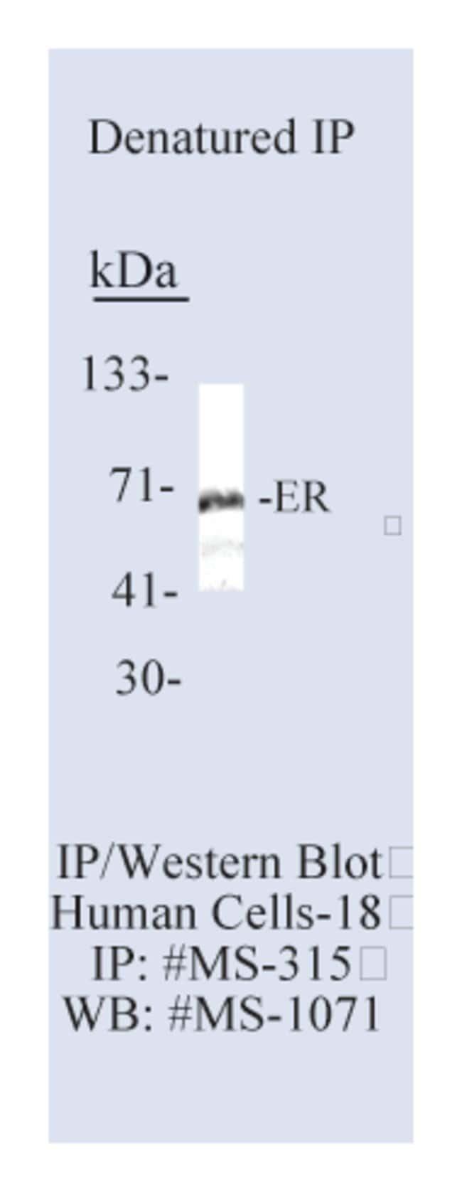 Thermo Scientific Lab Vision Estrogen Receptor Ab-10, Mouse Monoclonal