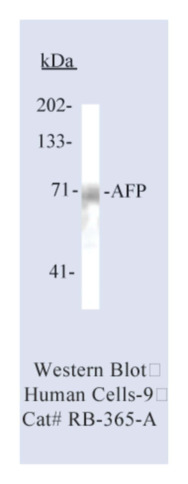 Thermo Scientific Lab Vision -Fetoprotein (AFP) Ab-2, Rabbit Polyclonal