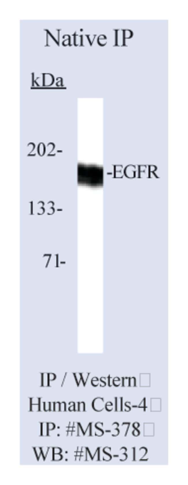 Thermo Scientific Lab Vision Epidermal Growth Factor Receptor/EGFR Ab-10,