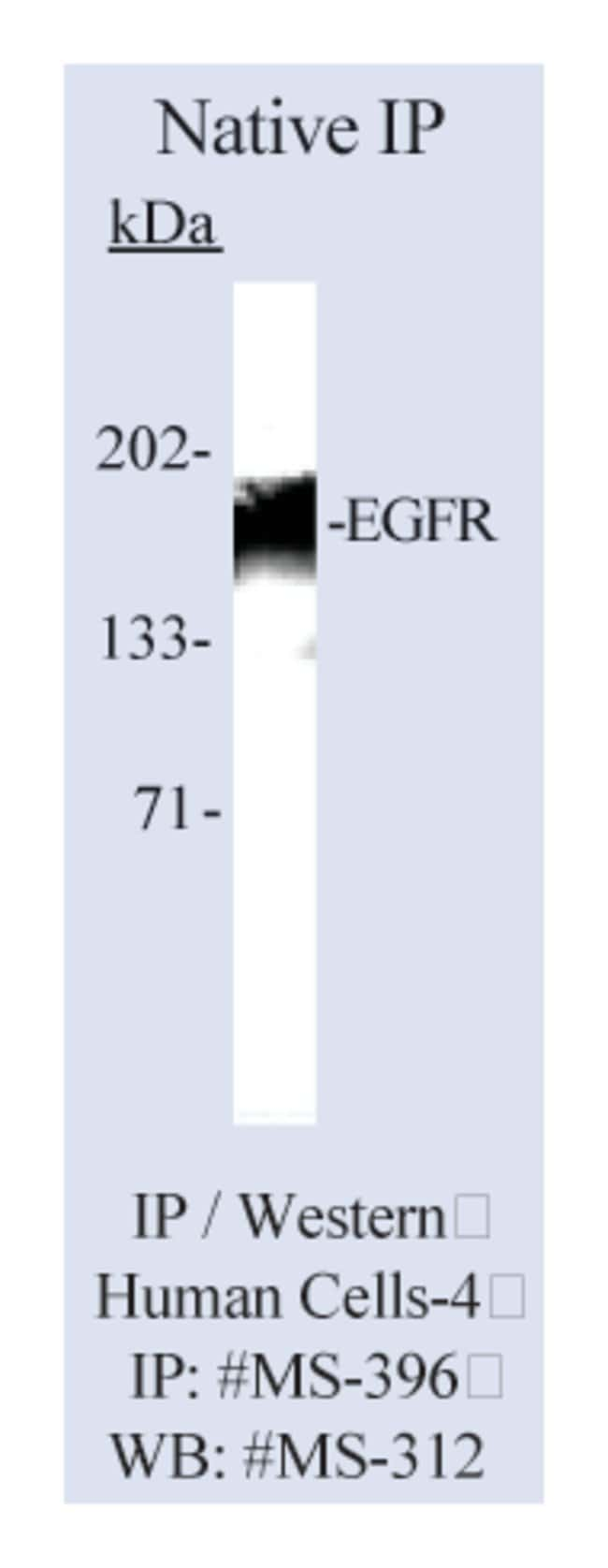 Thermo Scientific Lab Vision Epidermal Growth Factor Receptor/EGFR Ab-11,
