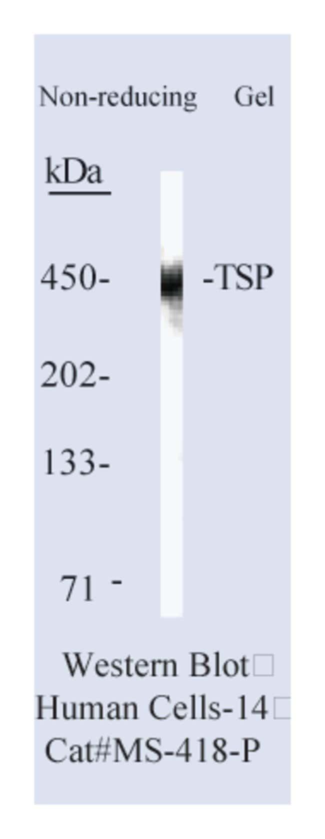 Thermo Scientific Lab Vision Thrombospondin (TSP) Ab-1, Mouse Monoclonal