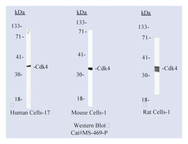 Thermo Scientific Lab Vision Cdk4 Ab-2, Mouse Monoclonal Antibody::