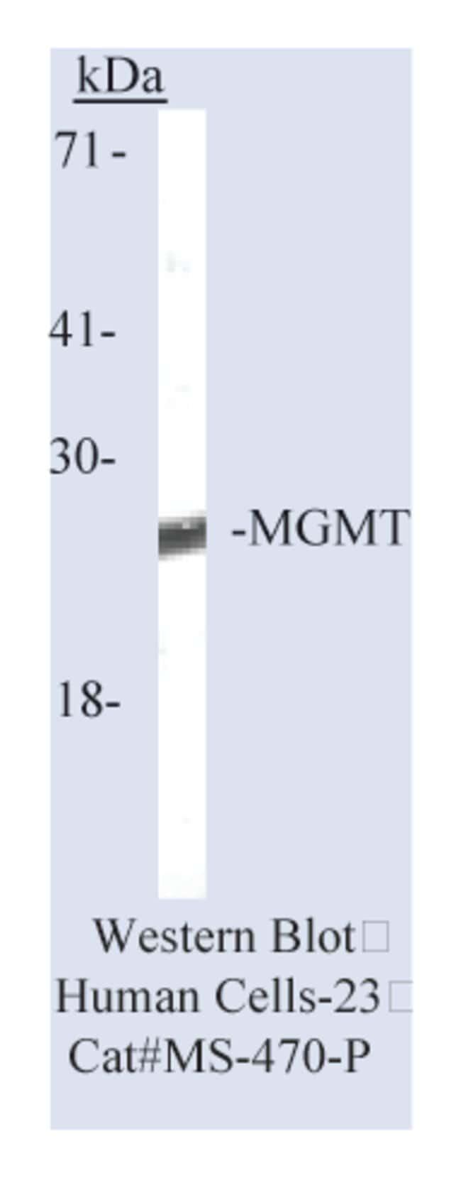 Thermo Scientific Lab Vision MGMT (O-methylguanine-DNA methyltransferase)