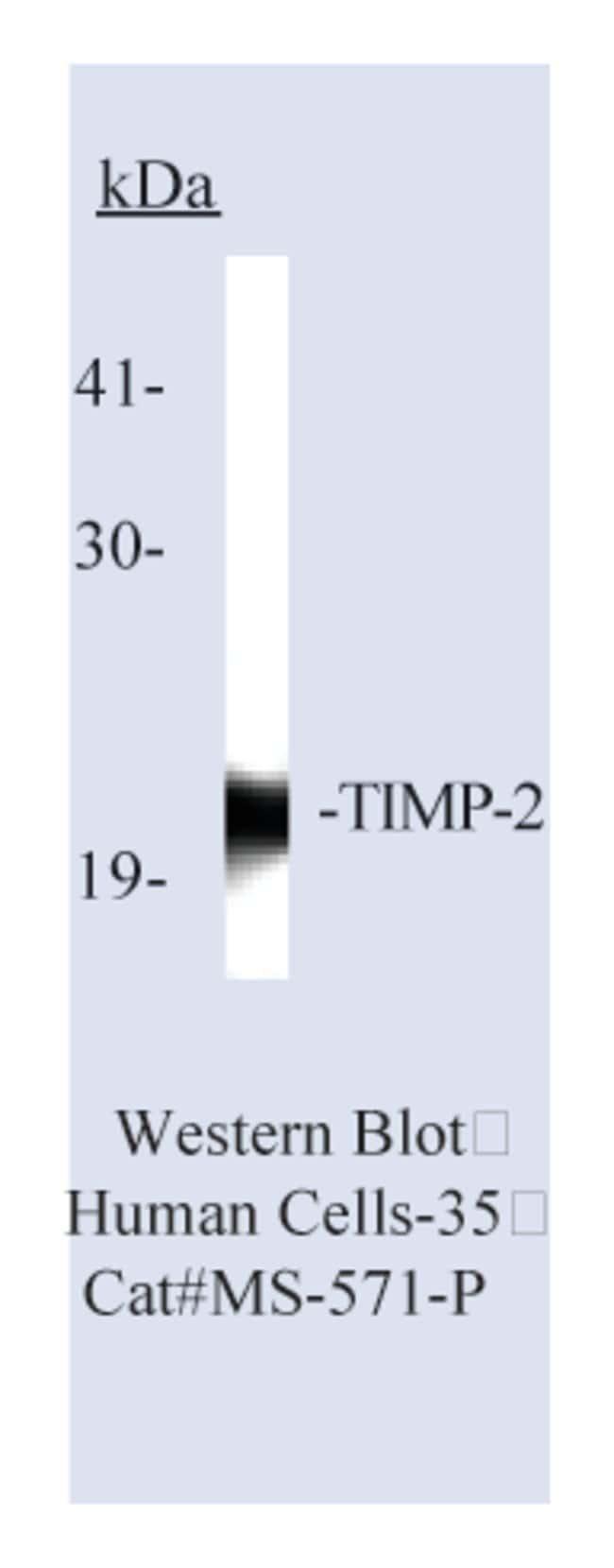Thermo Scientific Lab Vision TIMP-2 Ab-1, Mouse Monoclonal Antibody::