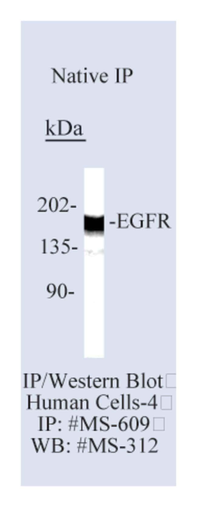 Epredia™Lab Vision™ Epidermal Growth Factor Receptor/EGFR Ab-13 Mouse Monoclonal Antibody 500μL; 200μg/mL; Biotin labeled with BSA and azide Epredia™Lab Vision™ Epidermal Growth Factor Receptor/EGFR Ab-13 Mouse Monoclonal Antibody