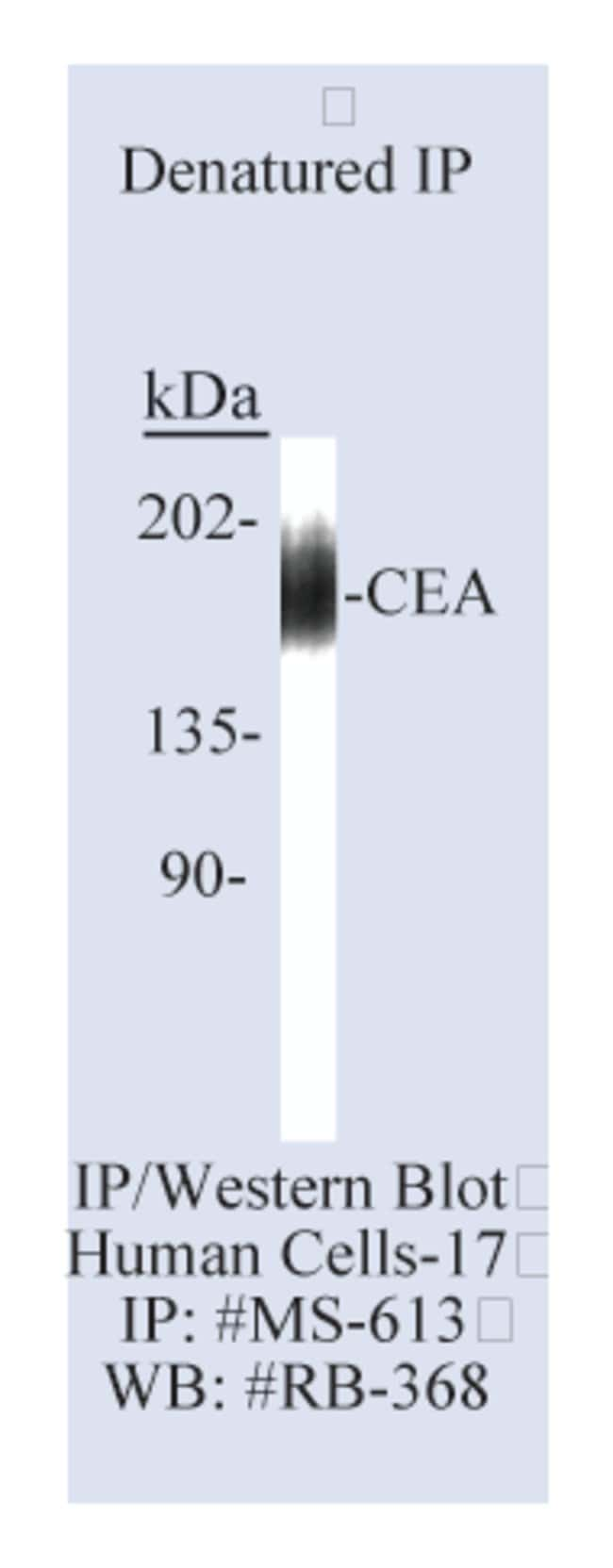 Thermo Scientific Lab Vision CEA (Carcinoembryonic Antigen)/CD66e Ab-3,