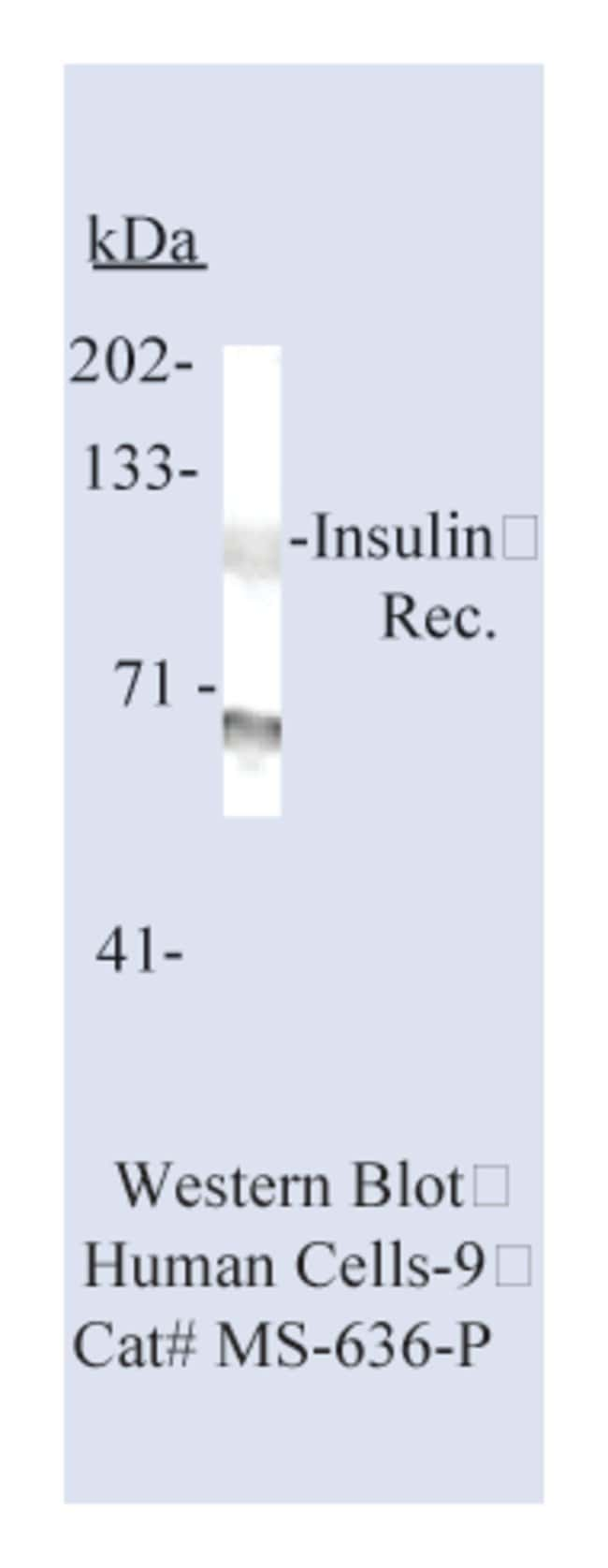 Thermo Scientific Lab Vision Insulin Receptor ( -Subunit) Ab-6, Mouse Monoclonal