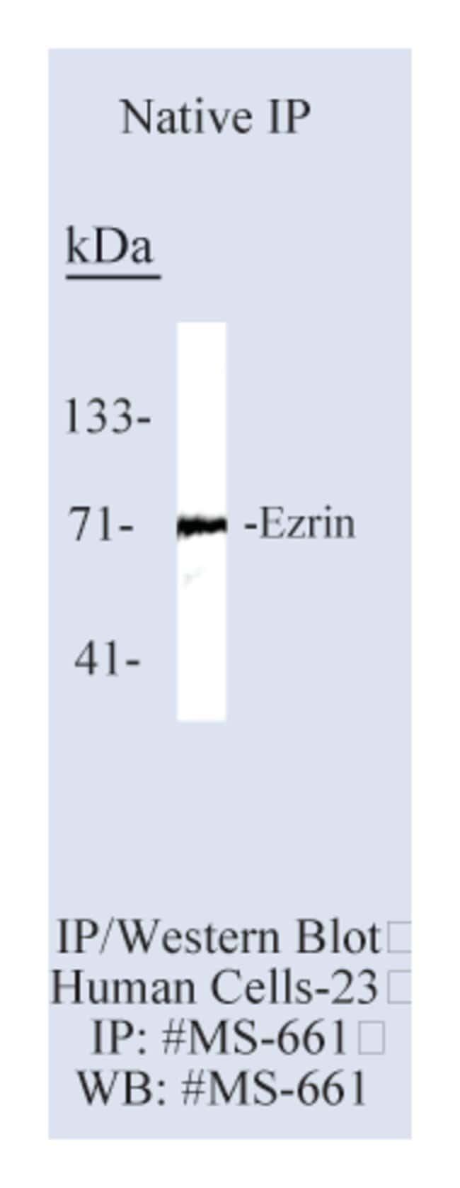 Thermo Scientific Lab Vision Ezrin/p81/80K/Cytovillin Ab-1, Mouse Monoclonal