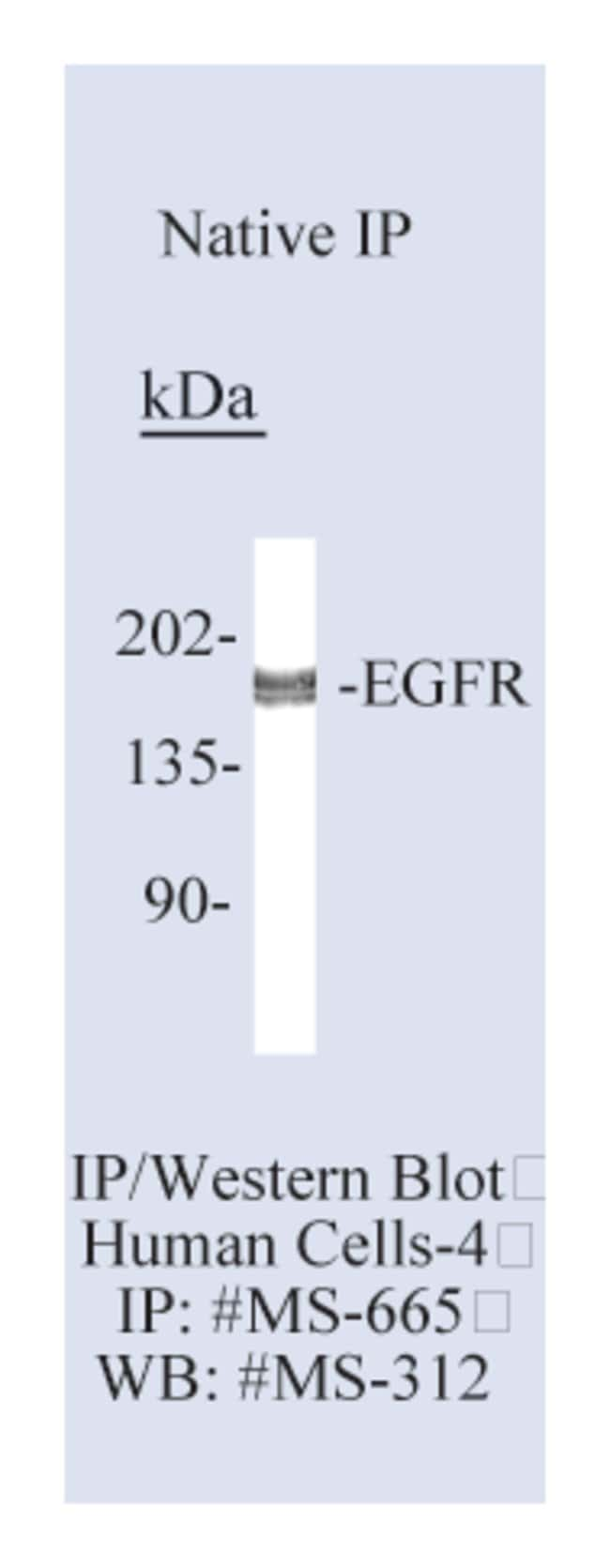 Thermo Scientific Lab Vision Epidermal Growth Factor Receptor/EGFR Ab-15,