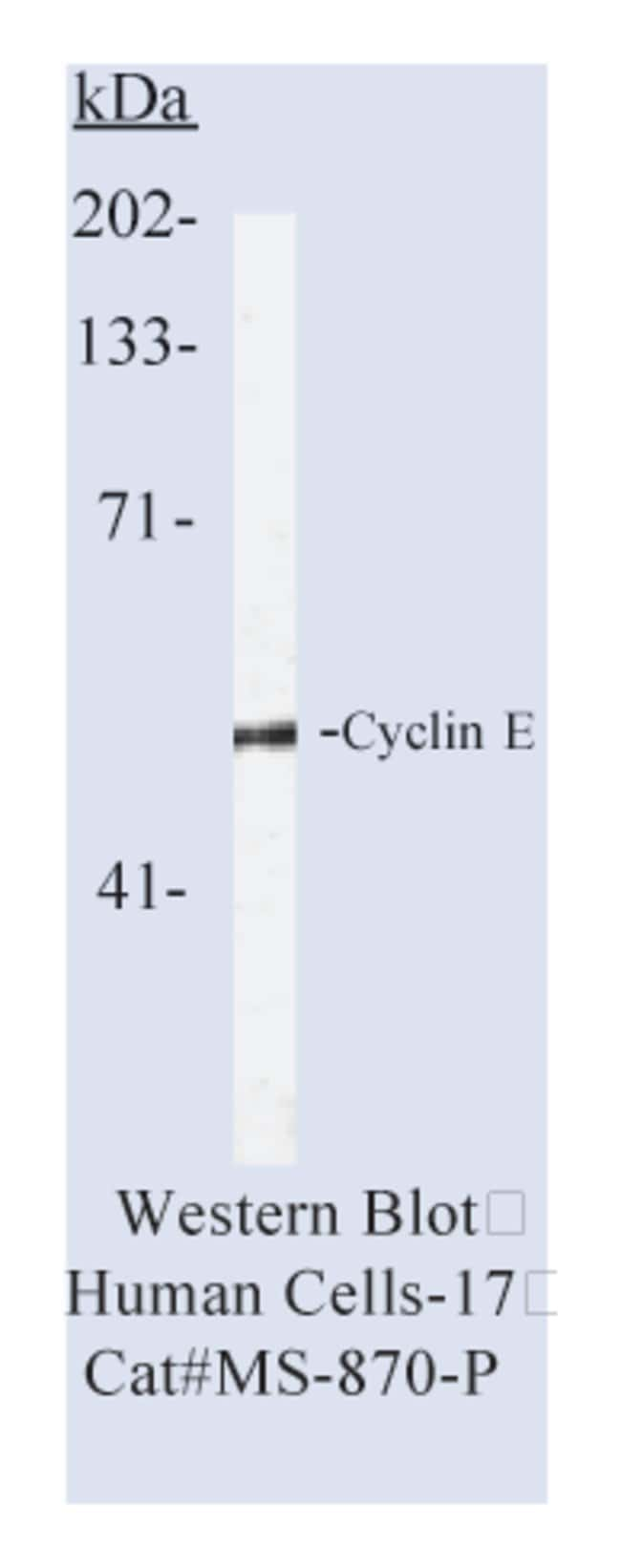 Thermo Scientific Lab Vision Cyclin E Ab-2, Mouse Monoclonal Antibody::