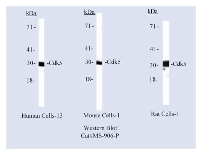 Thermo Scientific Lab Vision Cdk5 Ab-3, Mouse Monoclonal Antibody::