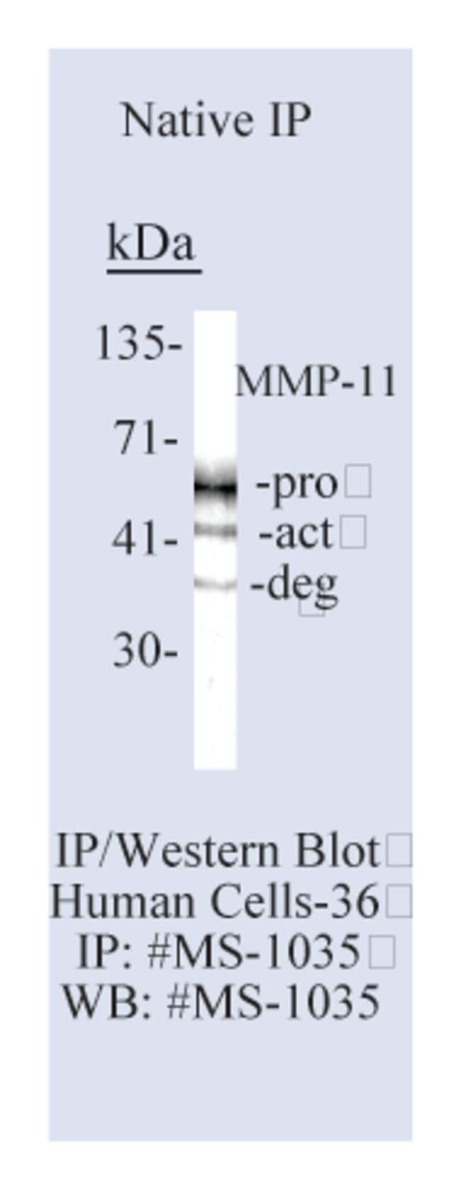 Thermo Scientific Lab Vision MMP-11 (Stromelysin-3) Ab-5, Mouse Monoclonal