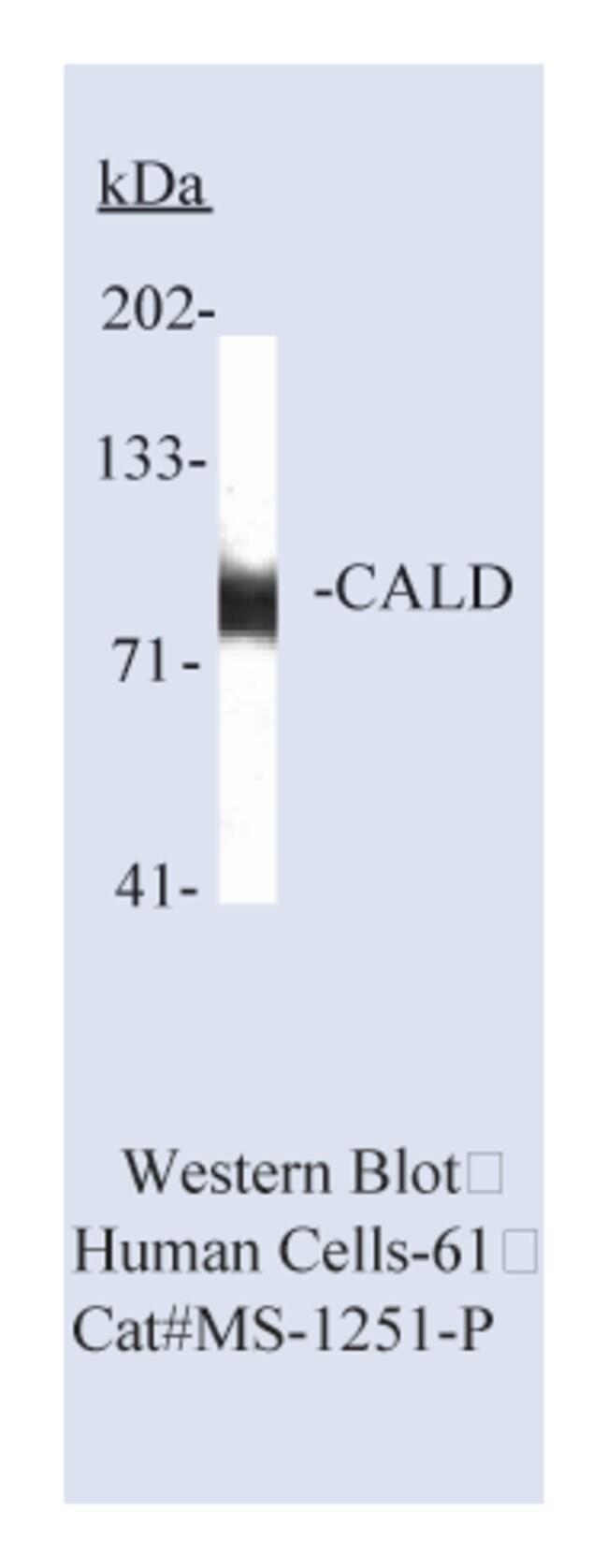 Thermo Scientific Lab Vision Caldesmon, LMW Ab-2, Mouse Monoclonal Antibody::