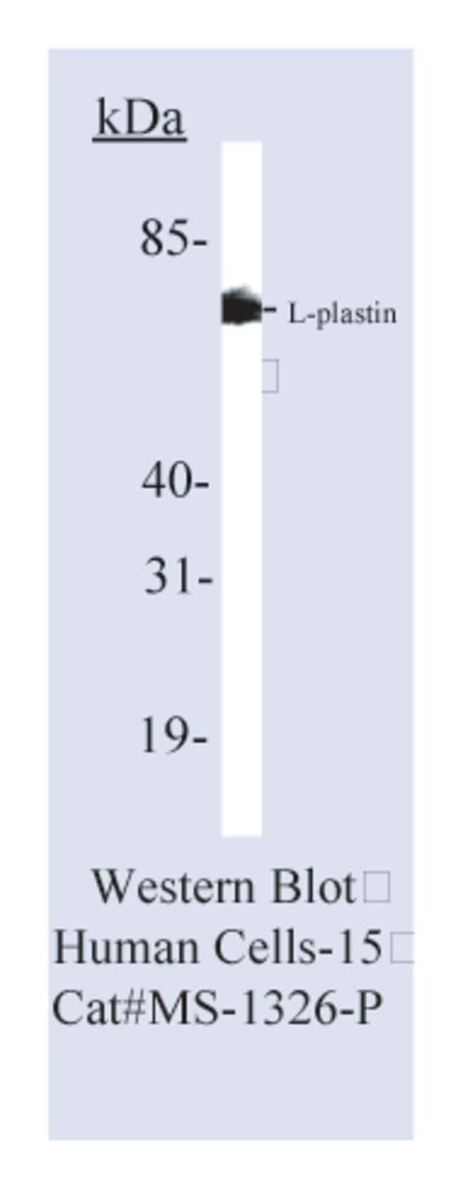 Thermo Scientific Lab Vision Plastin-L Ab-1, Mouse Monoclonal Antibody::