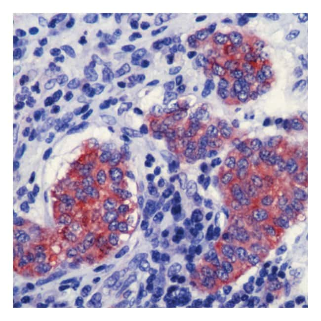 Thermo Scientific Lab Vision Synaptophysin Ab-4, Rabbit Polyclonal Antibody::