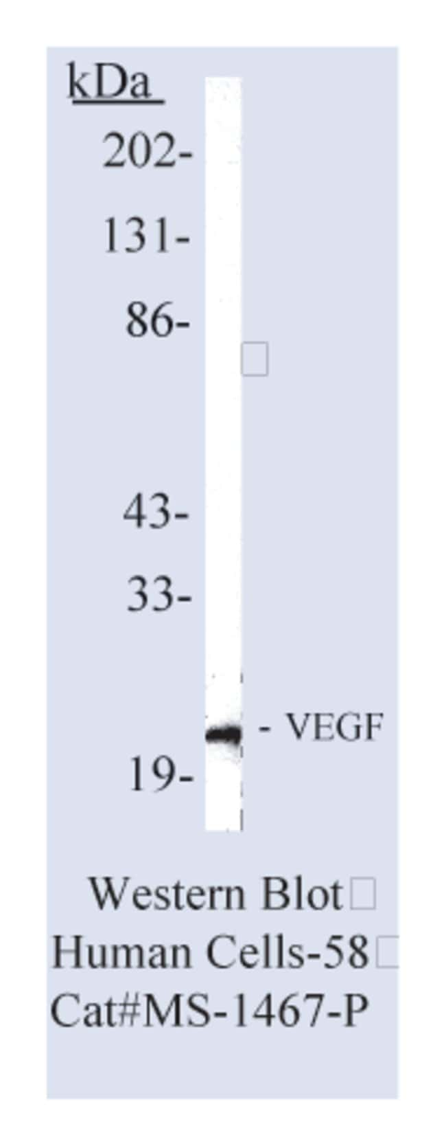Thermo Scientific Lab Vision Vascular Endothelial Growth Factor (VEGF)