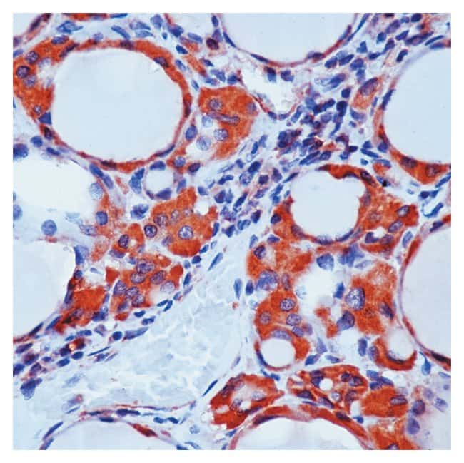 Thermo Scientific Lab Vision Calcitonin Ab-2, Rabbit Polyclonal Antibody::