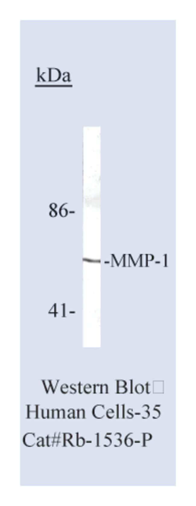 Thermo Scientific Lab Vision MMP-1 (Collagenase-1) Ab-6, Rabbit Polyclonal
